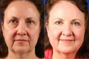 light therapy device-before-after-large-compressor
